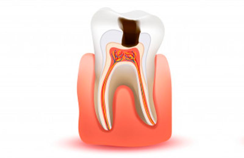 Endodontia em SP